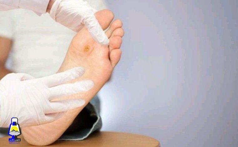 زخم پای دیابتی را بشناسید و راحت درمان کنید